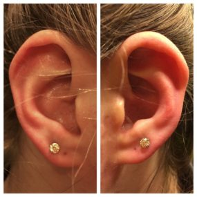 Pair of Earlobe Piercings done at Laughing Buddha Tattoo & Body Piercing Seattle, WA Capitol Hill