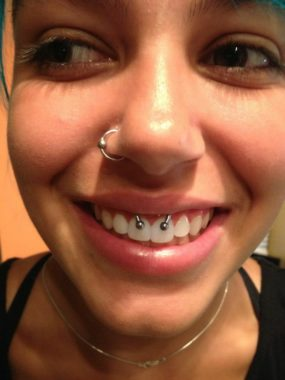 Smiley Piercing with Circular Barbell done at Laughing Buddha Tattoo & Body Piercing Seattle, WA Capitol Hill