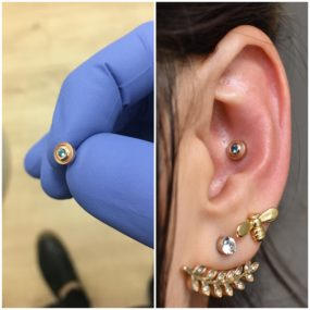 Conch Piercing done with 14k Gold and London Blue Topaz from BVLA at Laughing Buddha Tattoo & Body Piercing Seattle, WA. Capitol Hill