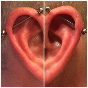 Pair of Industrial Piercings done at Laughing Buddha Tattoo & Body Piercing Seattle, WA Capitol Hill