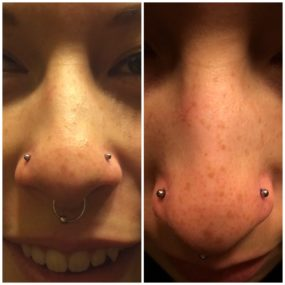 Pair of Nostril Piercings done at Laughing Buddha Tattoo & Body Piercing Seattle, WA Capitol Hill